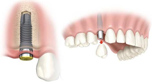 implantes-dentales-01
