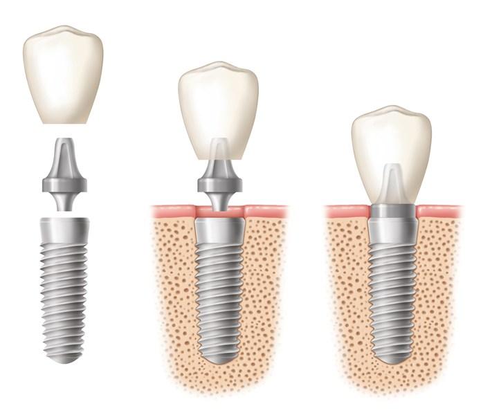 implantes-dentales-02
