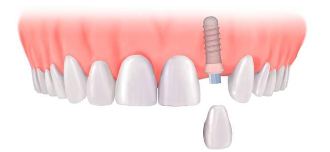 implantes-dentales-03