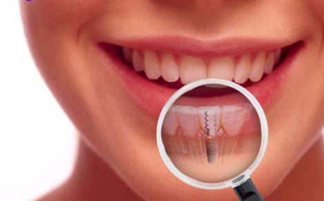 implantes-dentales-04