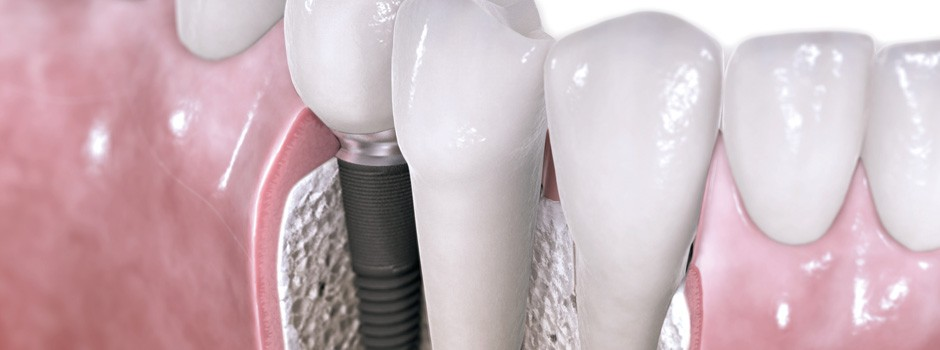 001_implantologia